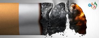 Il fumo e non solo, causa di cancro