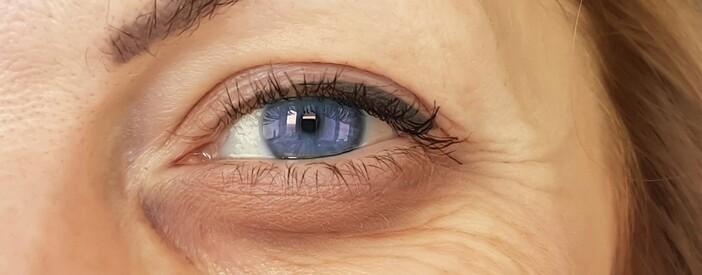 Maculopatia: sintomi iniziali, diagnosi e terapia