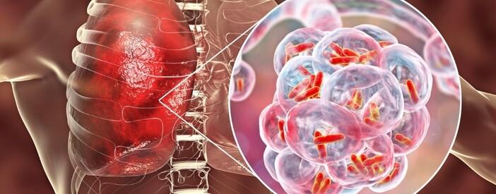 Tubercolosi o TBC: incubazione, sintomi e cura