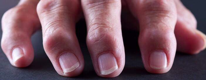 Cos'è l'artrosi (Osteoartrosi ipertrofica): cause e significato