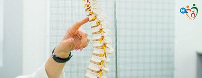 Come si previene l'osteoporosi?