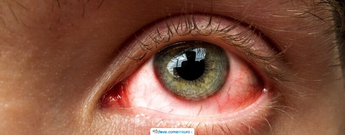 Occhi rossi: cause e rimedi