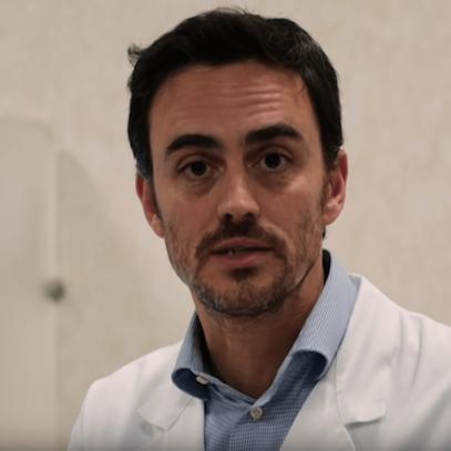 Sudore ascellare: i rimedi non chirurgici. Intervista Dott. Lanfranchi