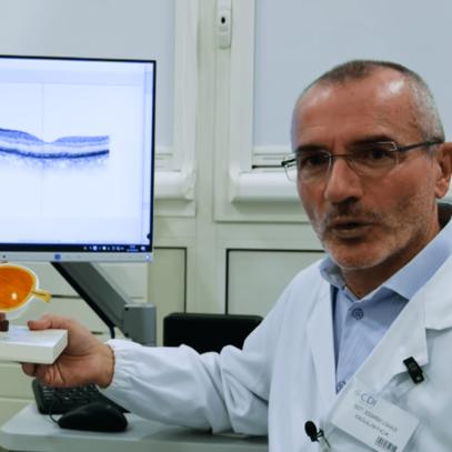 Degenerazione maculare senile: una nuova terapia