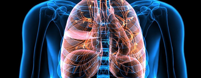 Tumore al polmone: dove operarsi in Valle d'Aosta?